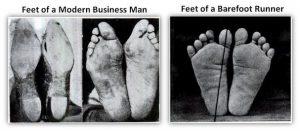 Compare good and bad feet